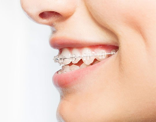 Adult braces Buckingham