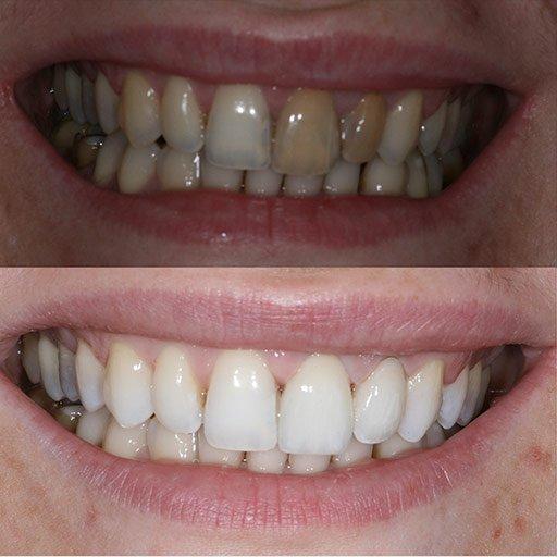 Private Dentist Buckingham