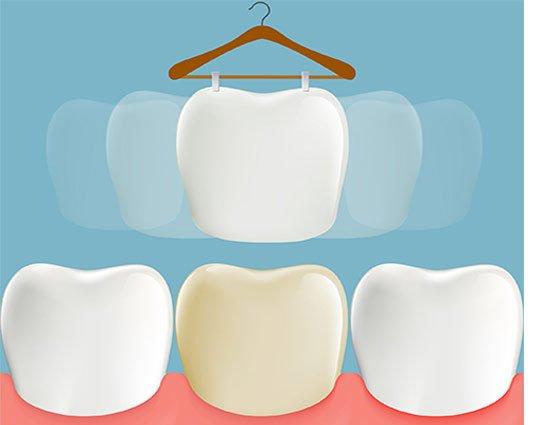 Teeth Veneers Winslow