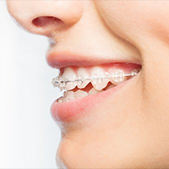 Best braces for adults